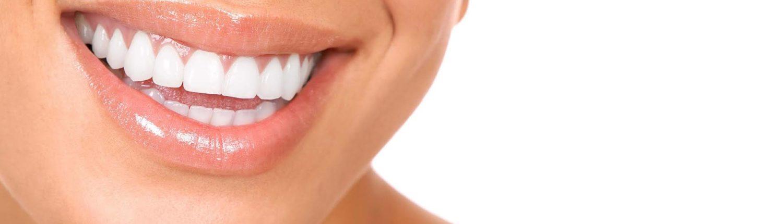 Blanquamiento Dental Clinica Dental - Dentista Dr. Reato Sant Cugat del Vallès