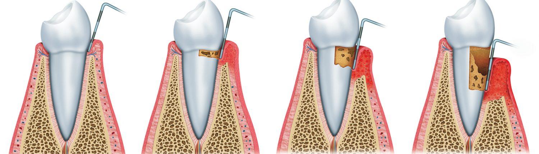 Peridoncia - dentista Periodoncista - Clinica Dental Dr. Reato Sant Cugat del Vallès