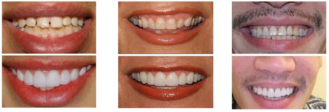carillas dentales resultados