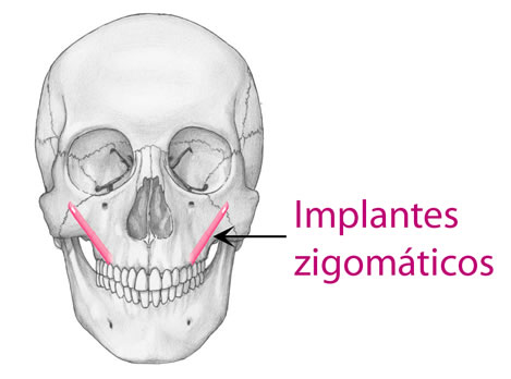 implantes-zigomaticos
