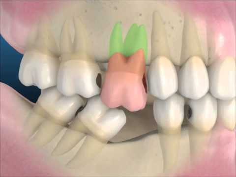 ausencia-de-piezas-dentarias