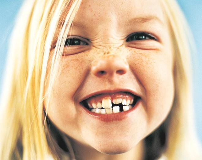 dientes-de-tiburon-2
