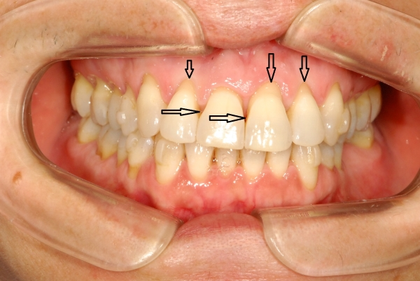 diferencia-gingivitis-y-periodontitis-1