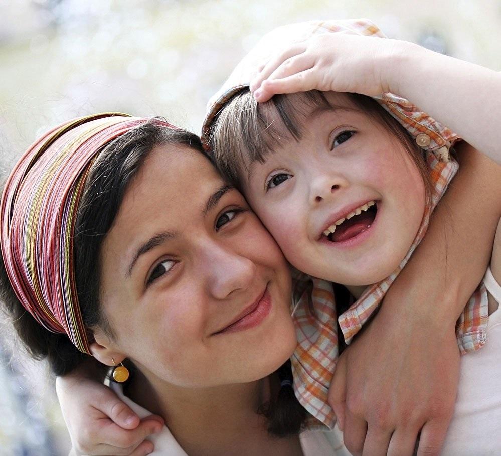 Enfermedad periodontal y síndrome de down