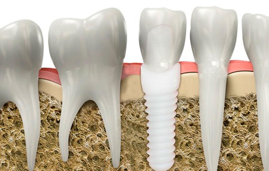 implante-de-zirconio-1