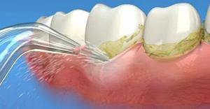 irrigador-dental