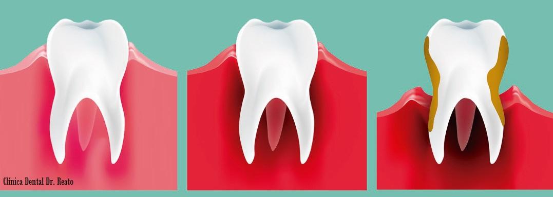 obesidad-y-periodontitis