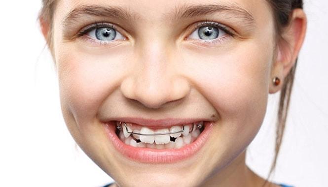 Deglución atípica y ortodoncia