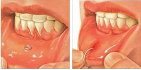 piercings-orales