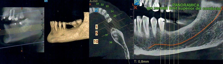 Radmedica Dentalscan OralBarcelona Dentista Maurizio Reato