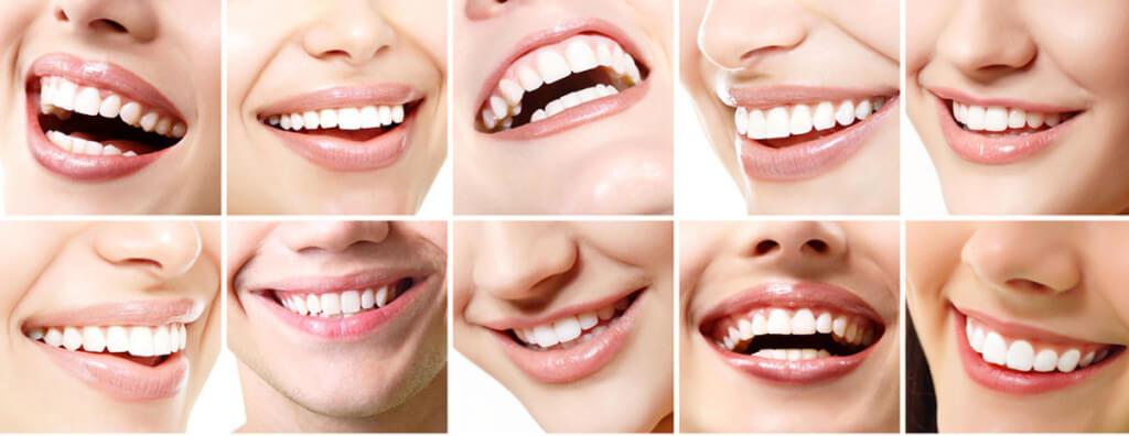 ¿las pastas dentales son todas iguales?